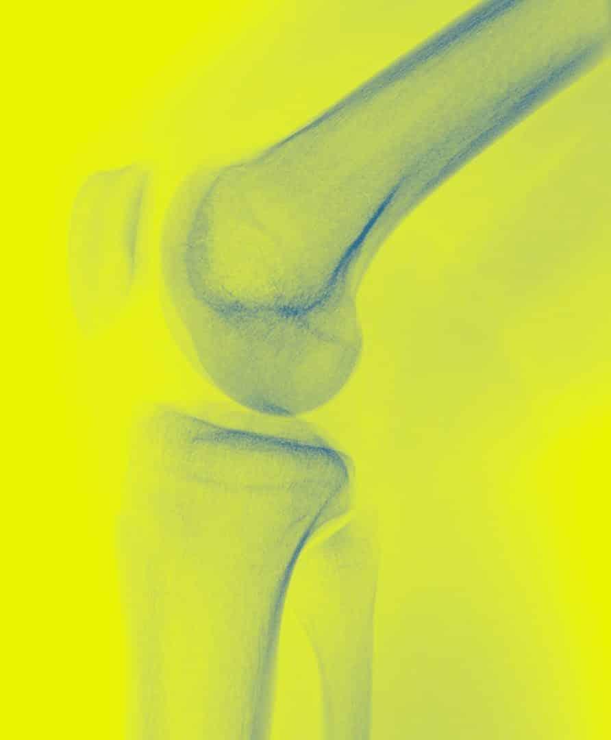 Knie Röntgen rechte Seite