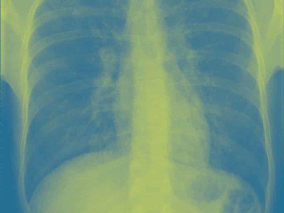 Lunge Samir PCP_CAP_CXR